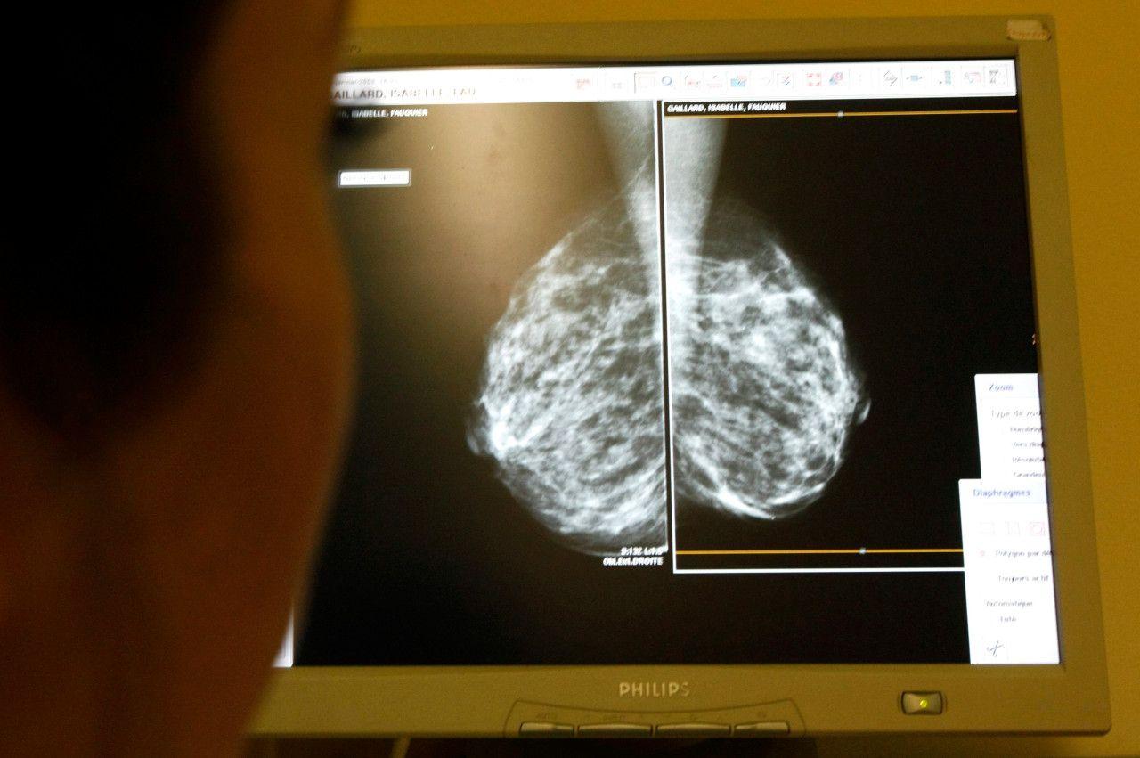 врач маммолог просматривает снимки рентгена молочной железы с новообразованиями