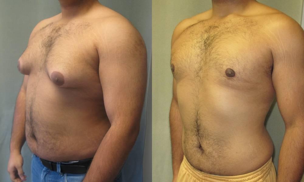 увеличенная грудь у мужчин