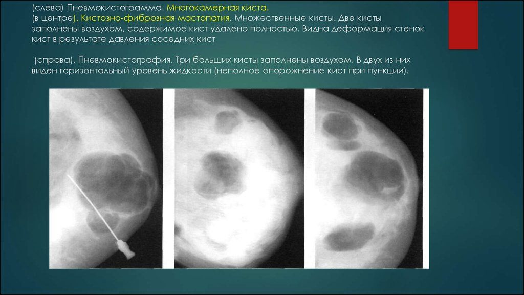 мастопатии фото кистозно фиброзной