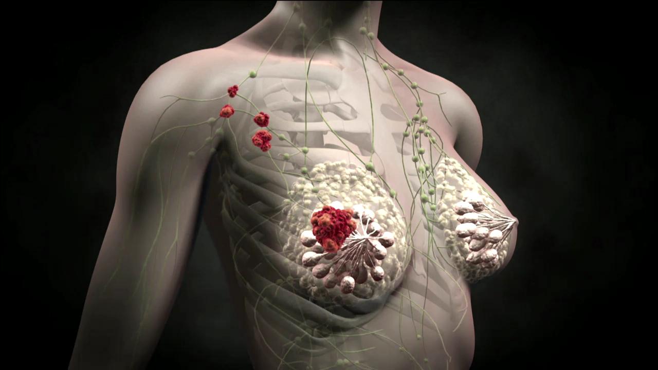 схема рак молочной железы