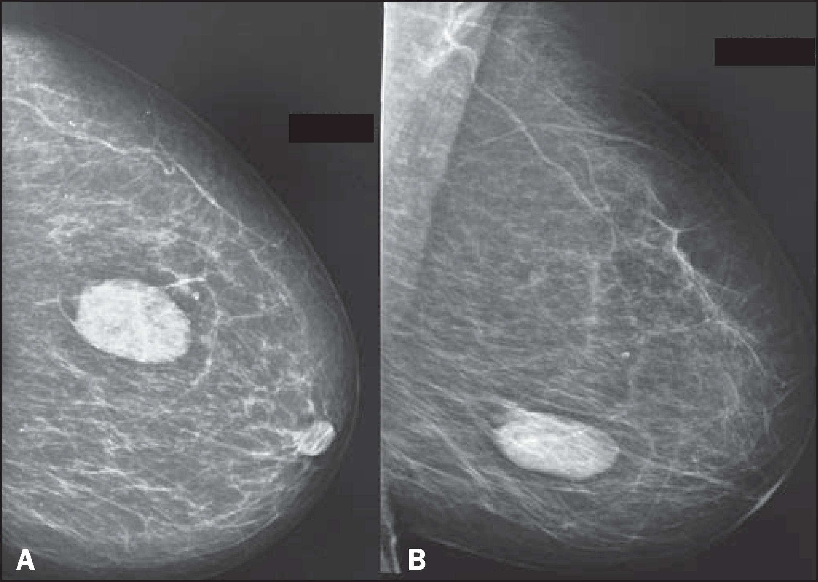 фиброаденома на рентгене груди
