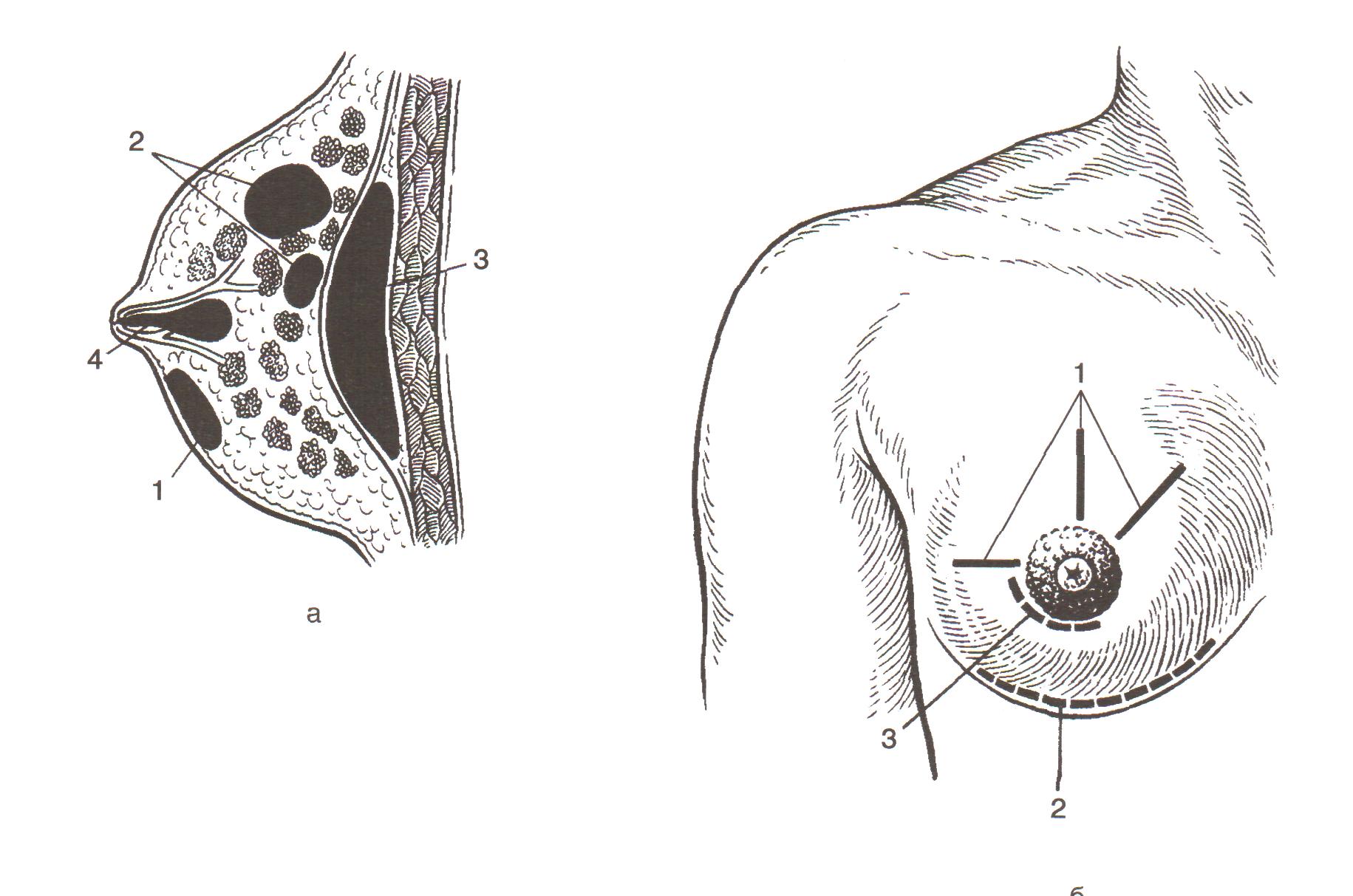 женская грудь с доброкачественными изменениями в разрезе на схеме