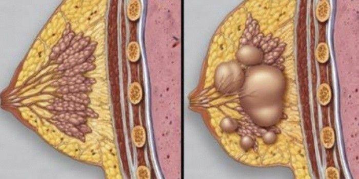 иллюстрация нормальная молочная железа и молочная железа при фиброзно-кистозной мастопатии