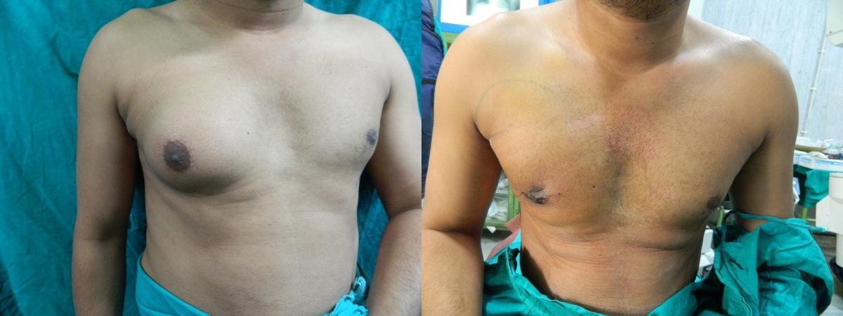 увеличение одной молочной железы у мужчины