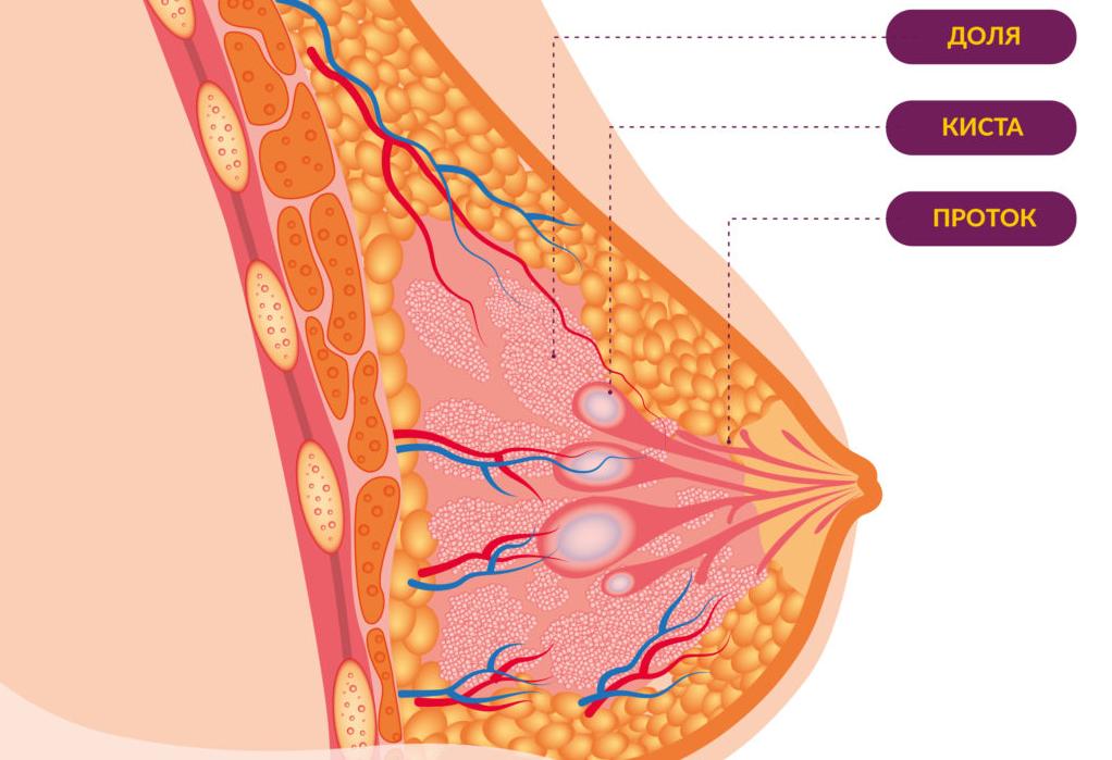 что такое киста молочной железы на рисунке