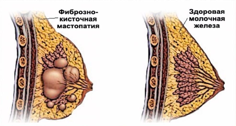 сравнение здоровой груди и пораженной мастопатией