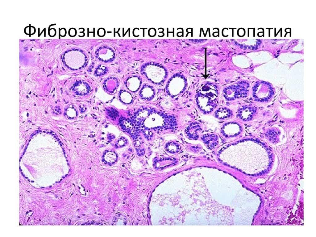 молекулы мастопатии