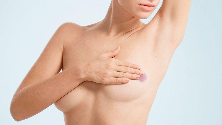 симптомы ушиба груди