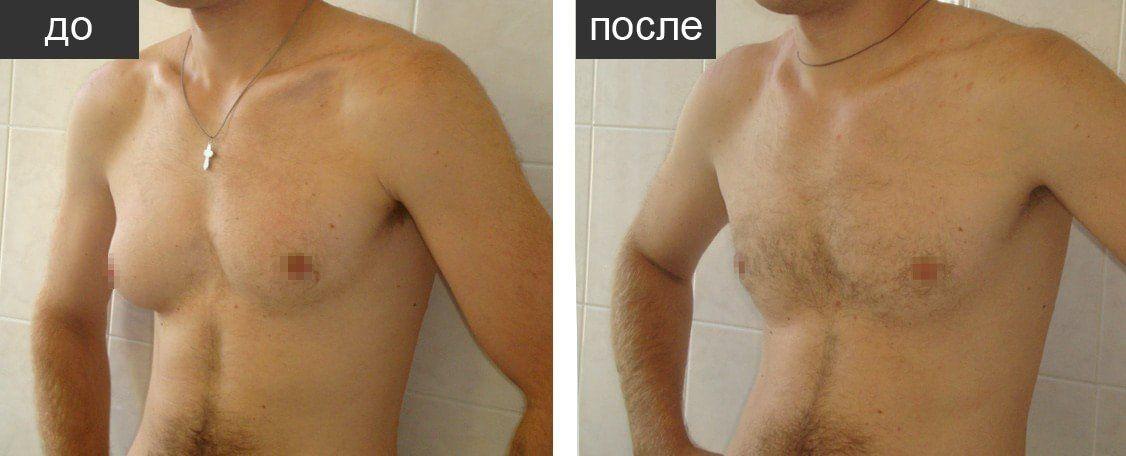 грудь мужчины до и после лечения гинекомастии