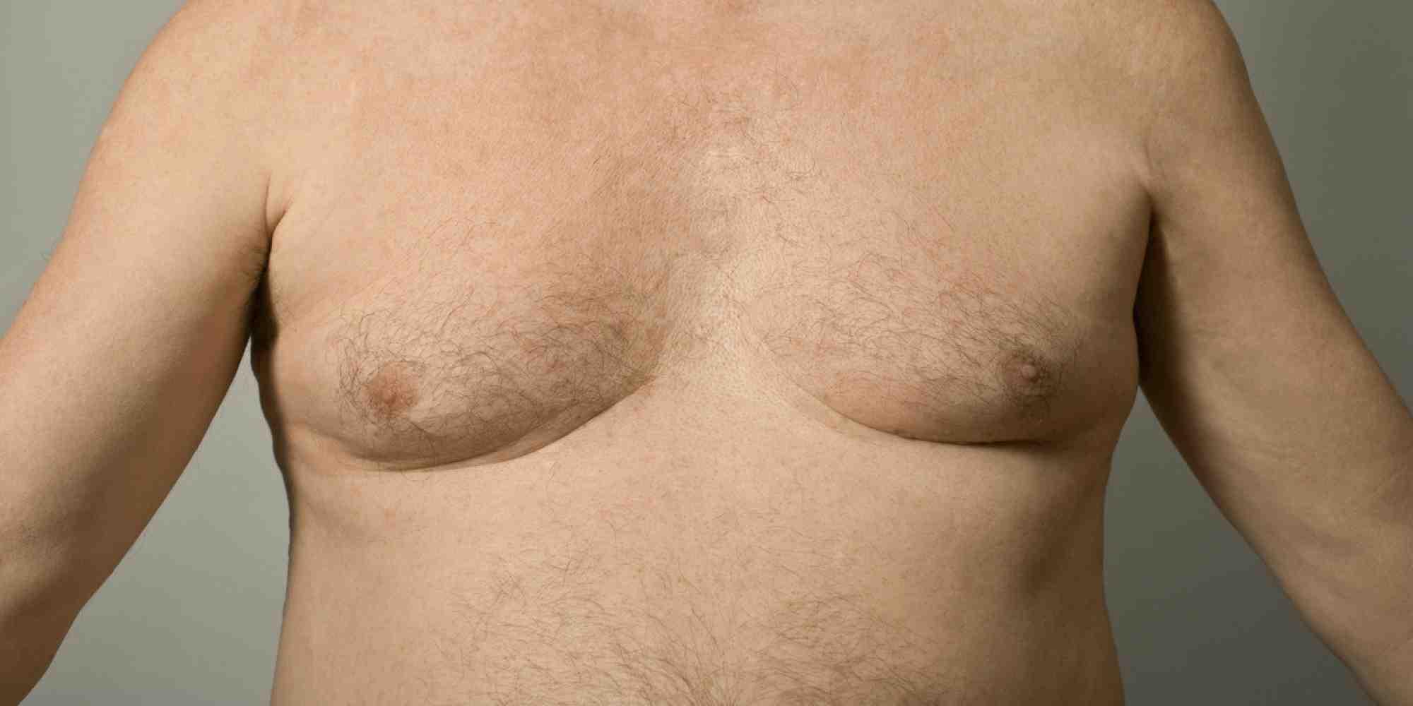 грудь мужчины при гинекомастии