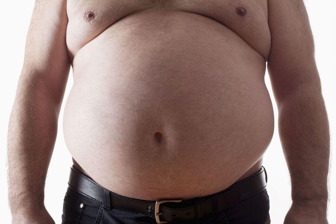гинекомастия у мужчин с ожирением