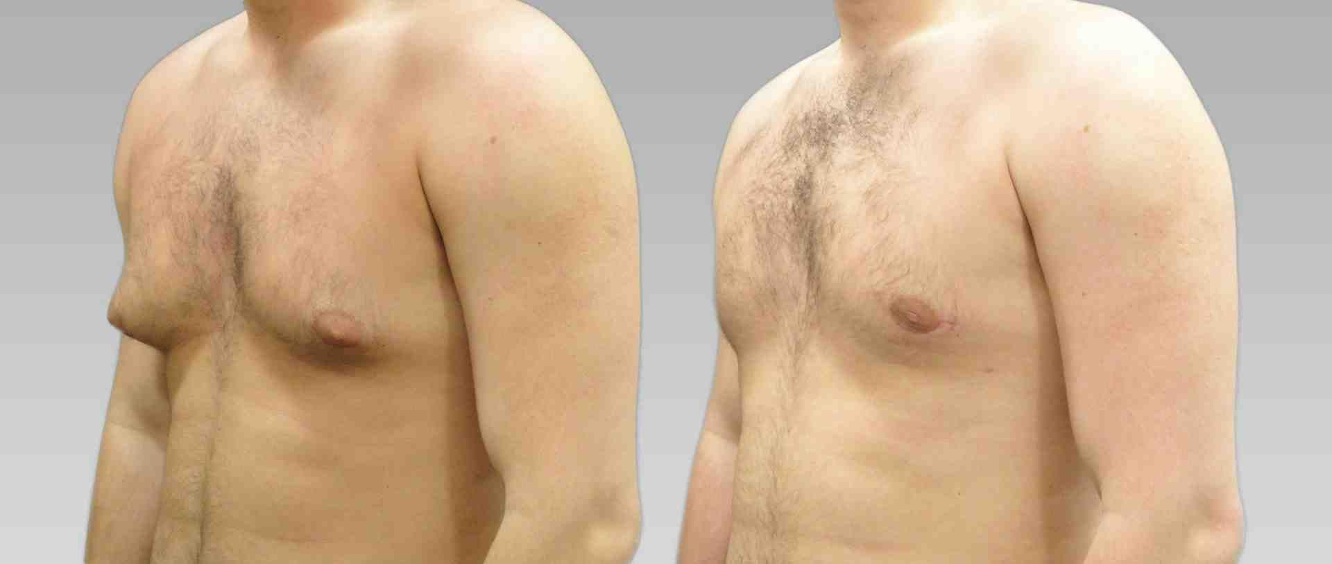 Фото больших ореол и сосков, Большие ореолы груди (big nipples) фото и видео 27 фотография