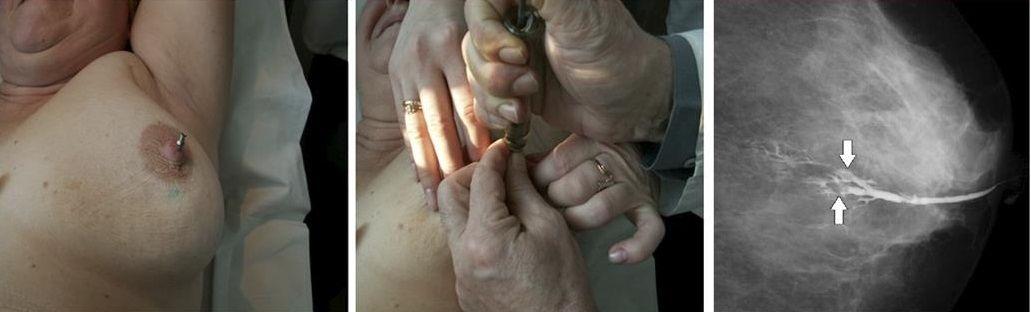 как проводится дуктография молочной железы
