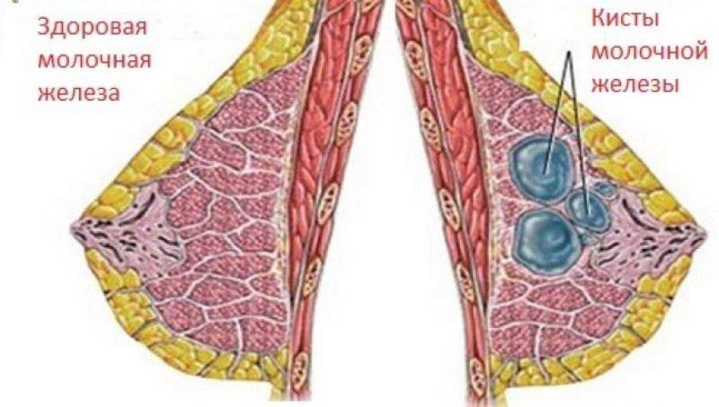 молочная железа здоровая и с образованием кист