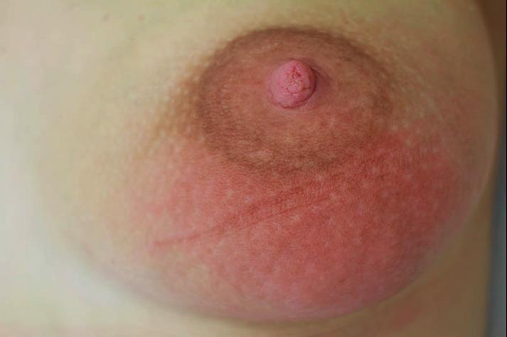 фото груди при мастите