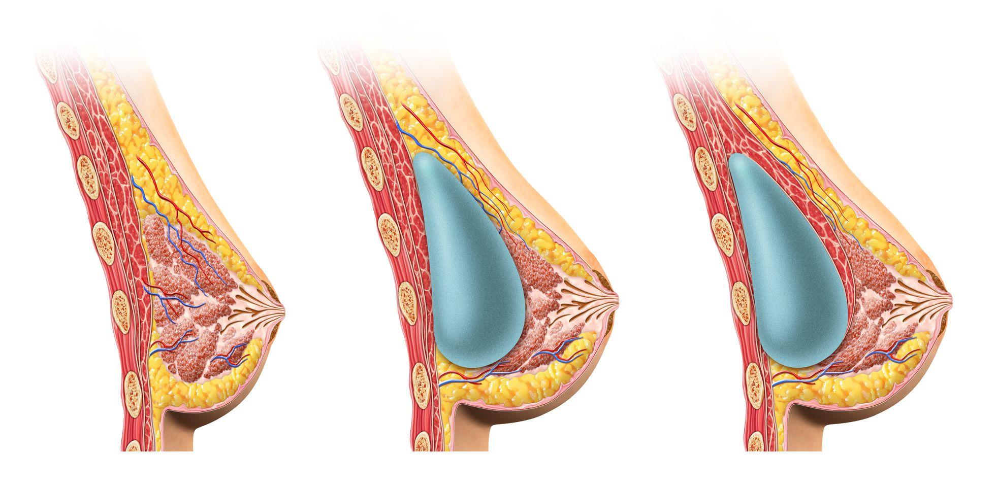 нарастание ткани вокруг импланта груди