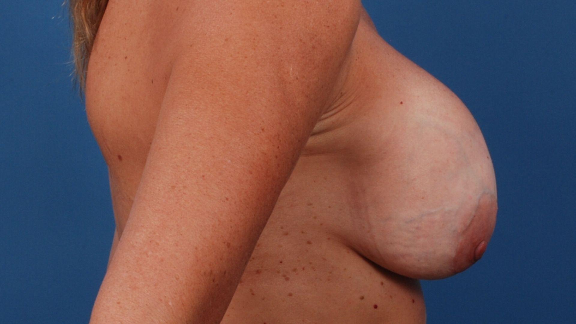 капсулярная контрактура груди изменение формы после маммопластики
