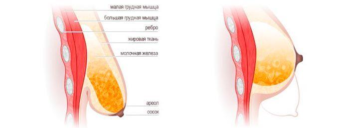 разные груди