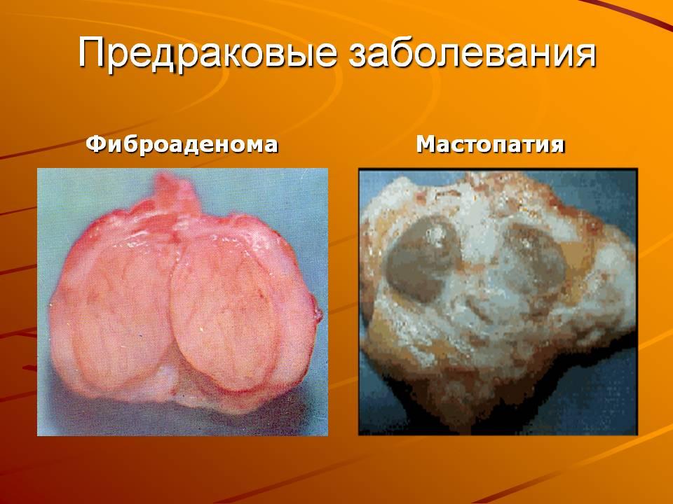 две картинки опухоли