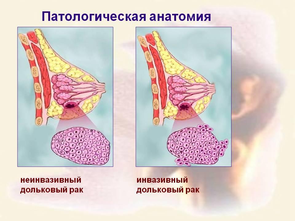 два вида рака