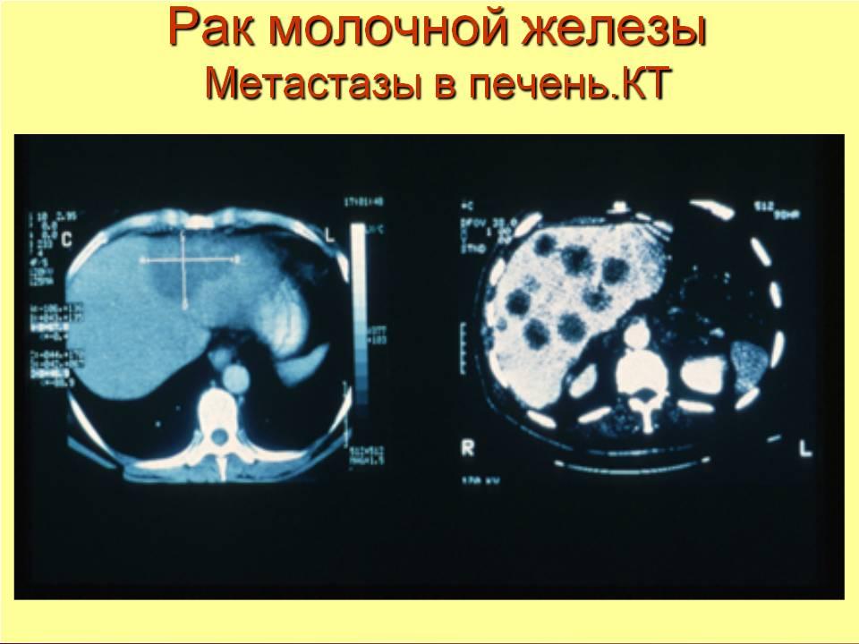 метастазы в печени при раке молочной железы