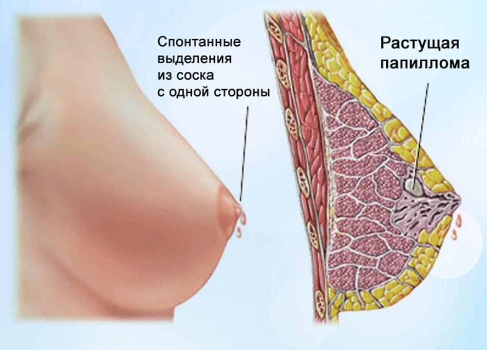 Черные выделения у женщин из груди