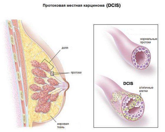 протоковый рак