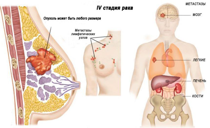 метастазы при раке молочной железы