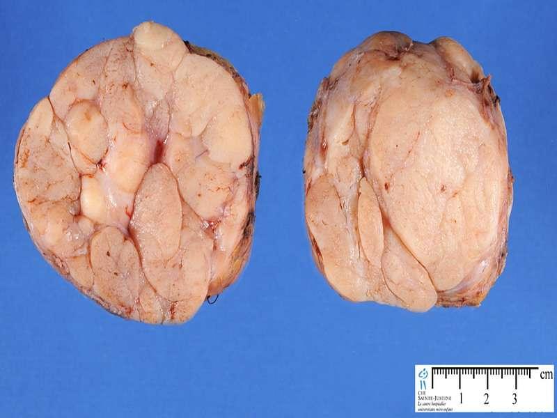 Узи признаки фиброаденомы 4