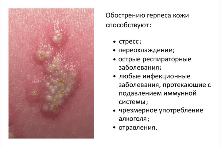 Особенности герпеса на груди