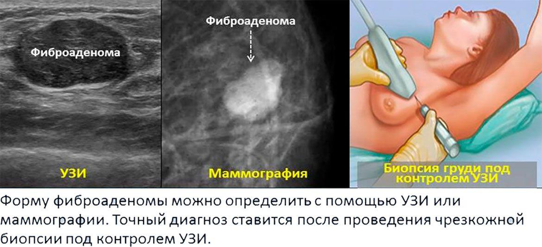 Фиброаденома молочной железы на узи как выглядит