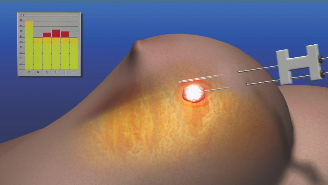 лазер в груди
