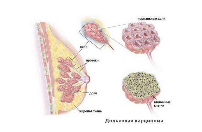 рак дольки в груди