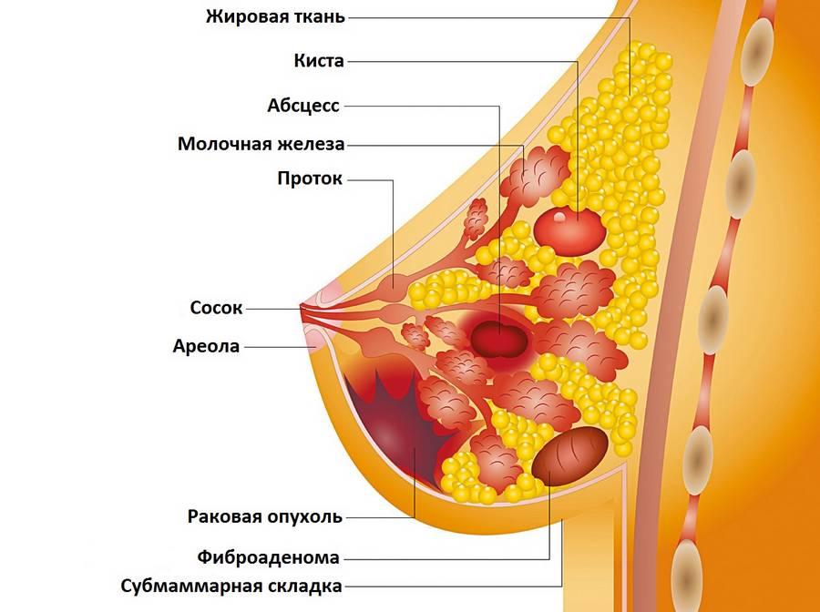 возможные новообразования в молочной железе
