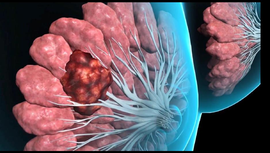 опухоль среди молочных желез в груди
