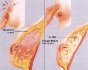 Посоветуйтесь с врачом.в этой ситуации врачи советуют применять ретромаммарную блокаду, в качестве анестезирующего метода.