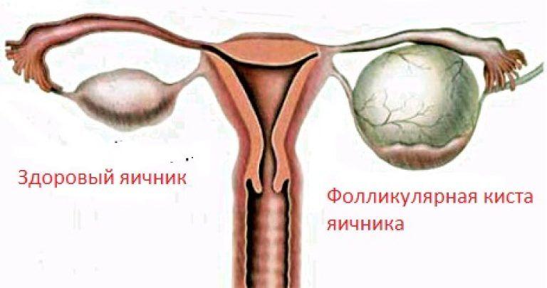 заболевания яичников как причина возникновения мастопатии