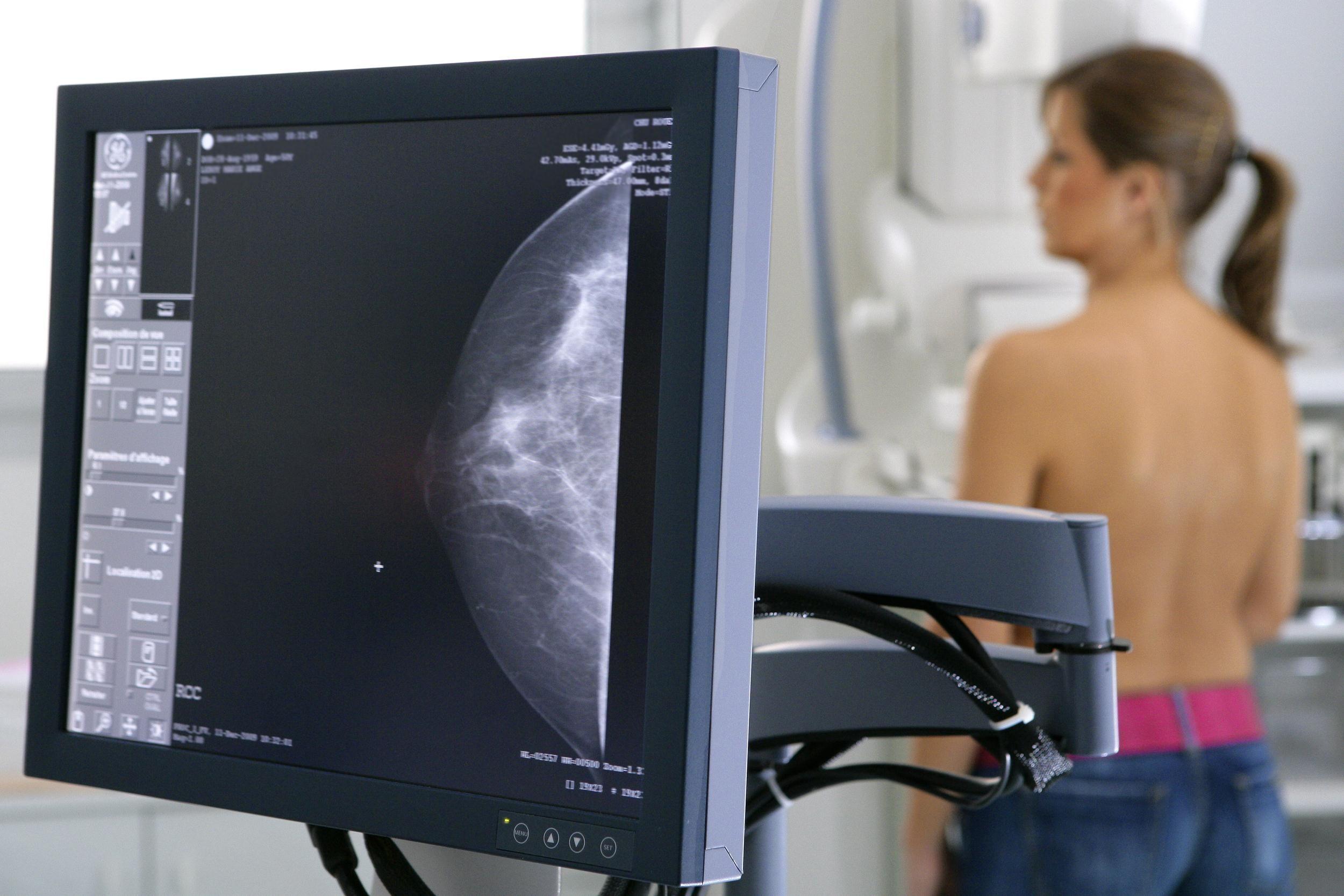 женщина делает рентген молочной железы