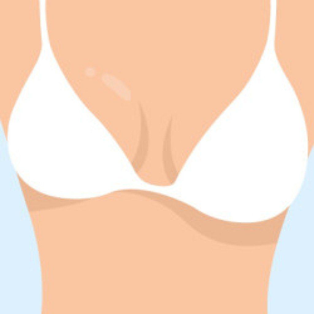 разная грудь