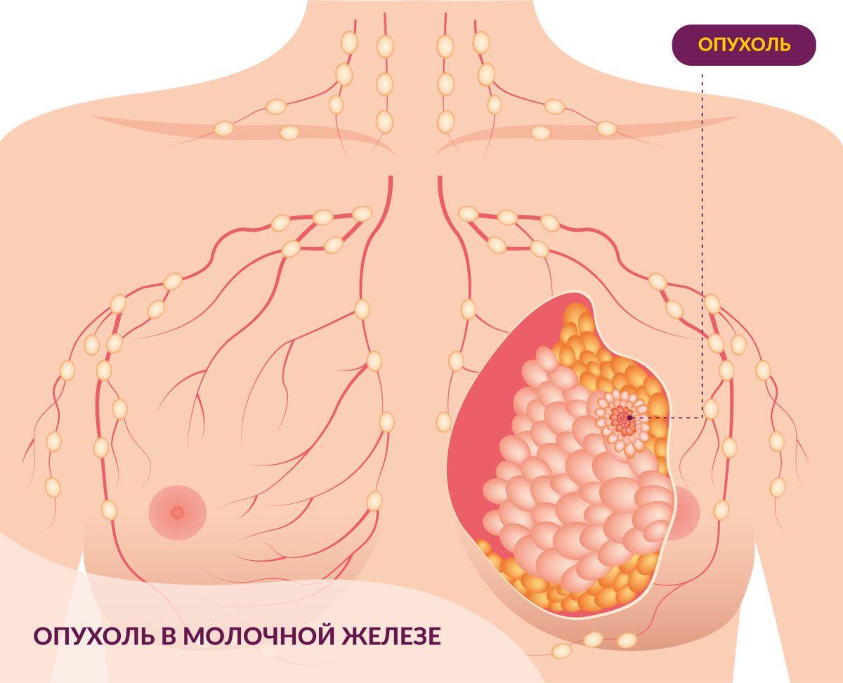 Морфологические особенности рака молочной железы, такие как медуллярная карцинома и тройной негативный фенотип (рецепторы эстрогенов и отсутствие гиперэкспрессии her-2/neu).