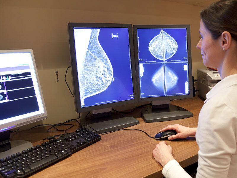 врач смотрит результаты маммографии на мониторе