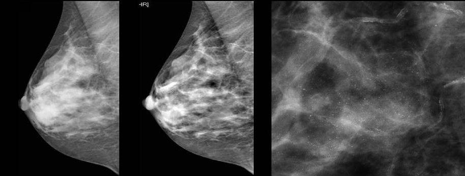 ренген молочной железы с новообразованиями