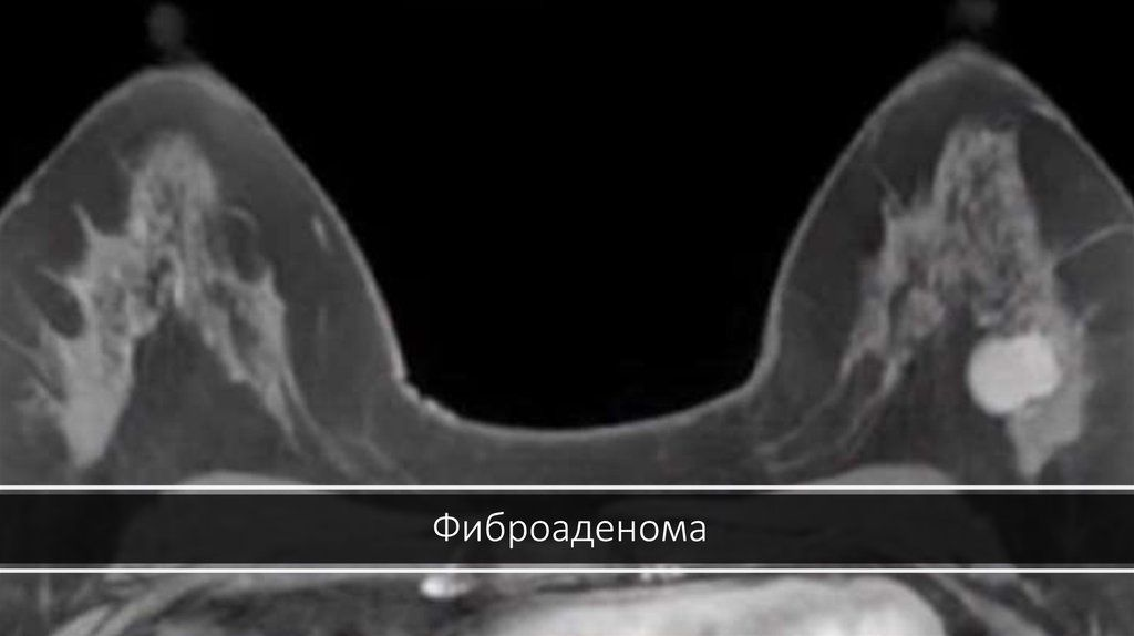 фиброаденома на маммографии