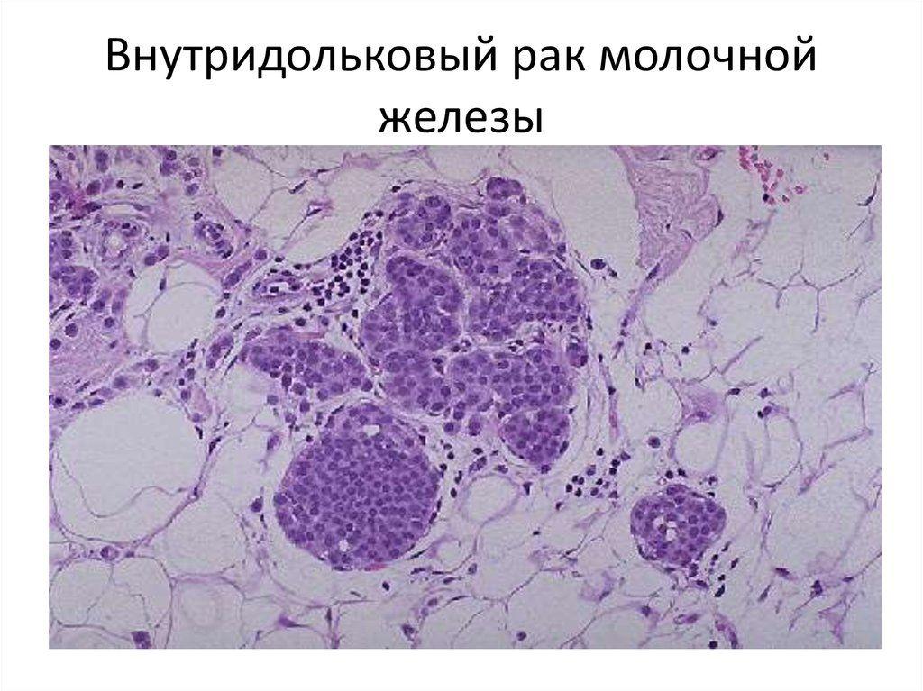 раковые клетки в увеличенном виде