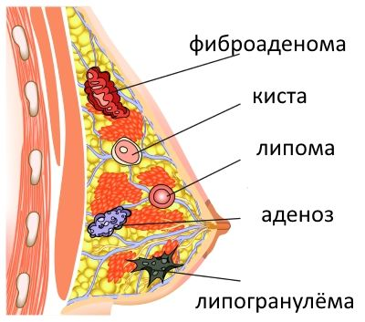 Темно коричневые выделения из груди 2