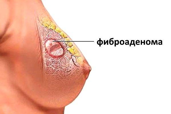 Дольки молочной железы на ощупь