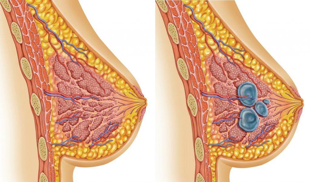 Молочная железа в картинках заболевание