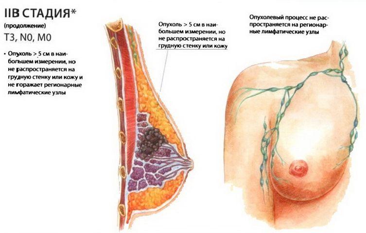 стадия рака груди
