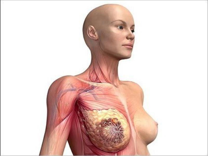 заболевание груди
