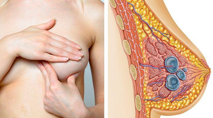болит грудь при паталогии